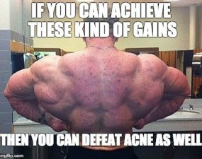 Does Acne Always Have to Accompany Gains?
