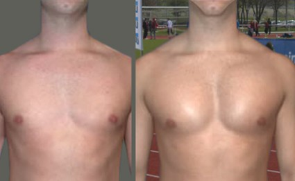 ectomorph chest